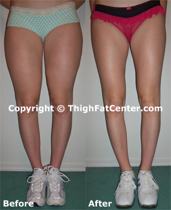 Untoned Thighs How To Get Skin...