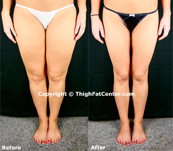 How To Lose Inner Thigh Fat FAST – Get Thin Thighs Now!